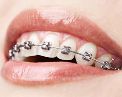 stainless-steel-braces-small
